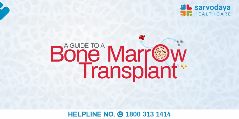 A Guide to a Bone Marrow Transplant