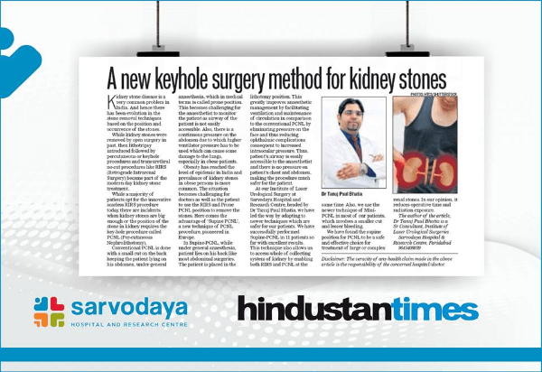 A new keyhole surgery method for kidney stones