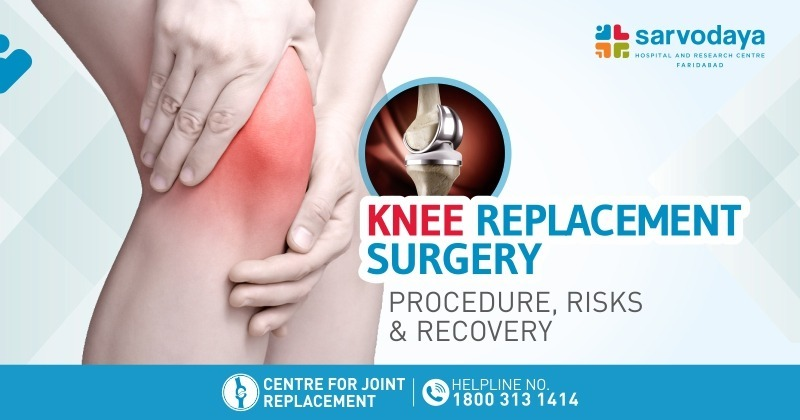 Knee Replacement Surgery - Procedure, Risks & Recovery