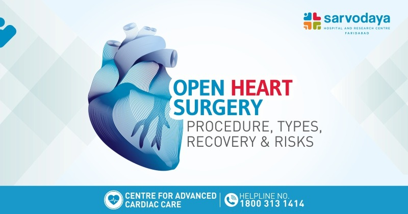 Open Heart Surgery- Procedure, Types, Recovery & Risks