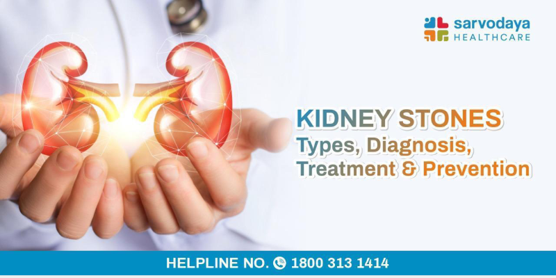Kidney Stones - Types, Diagnosis, Treatment & Prevention