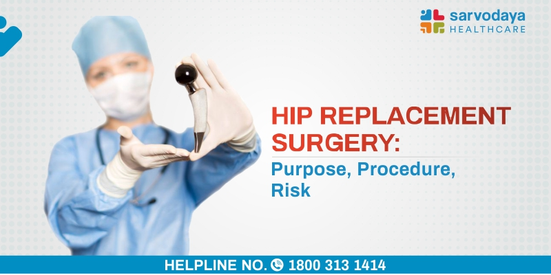 Hip Replacement Surgery - Purpose, Procedure, Risks