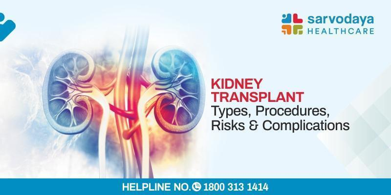 Kidney Transplant - Types, Procedure, Risks, &  Complications