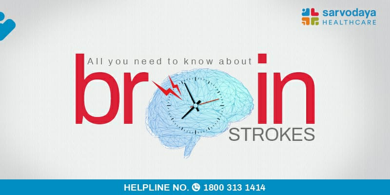All you need to know about Brain Strokes