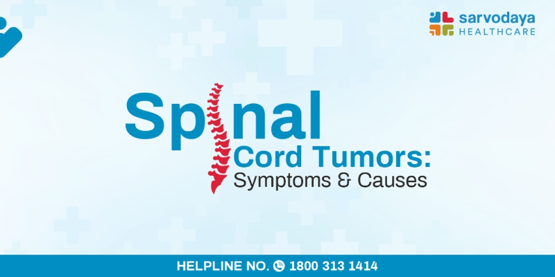 Spinal Cord Tumors - Symptoms and Causes